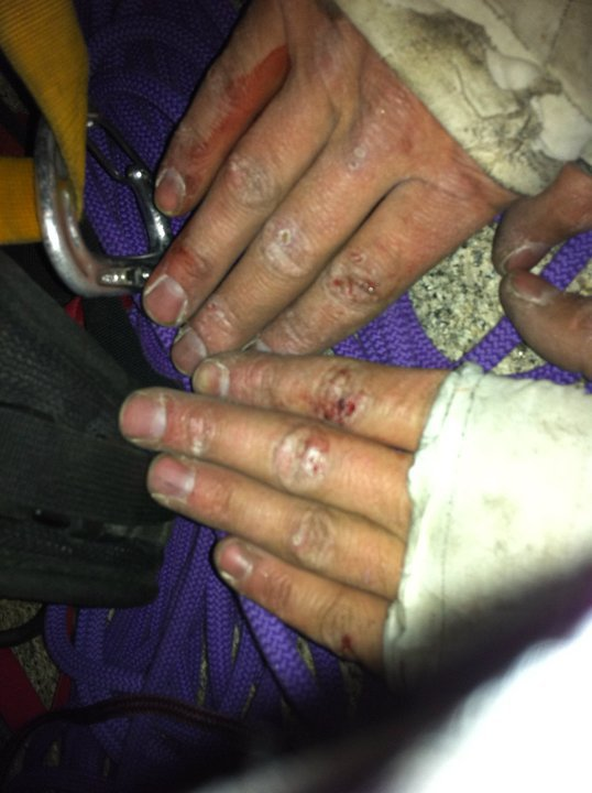 Hands after 21 hours climbing